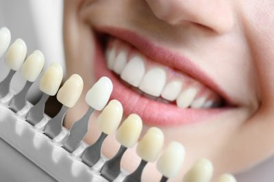 affordable dentist Lake MacDonald - dental implants - dental crowns - teeth whitening - emergency dentists Lake MacDonald qld